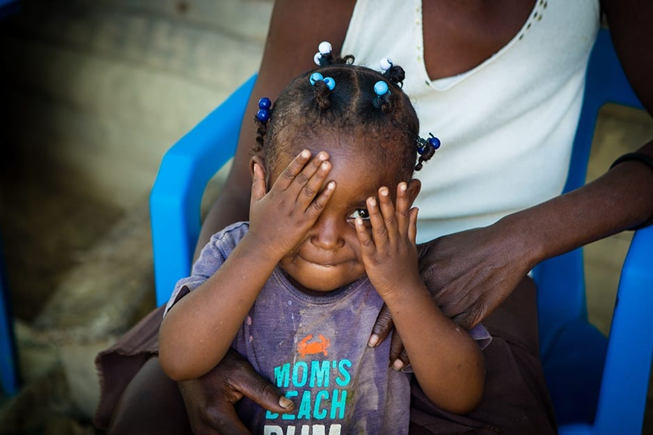 Lunie Lozama, a 2-year-old malnutrition patient, plays peek-a-boo while standing by her mother at their home in rural Lascahobas, Haiti.